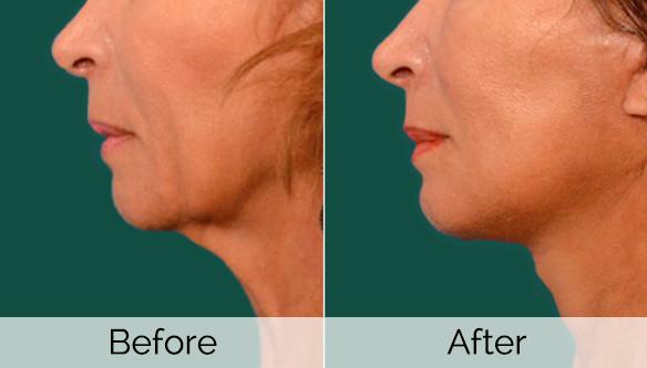 Dr. Sheetal Slimming Beauty and Cosmetology Clinic weddingplz