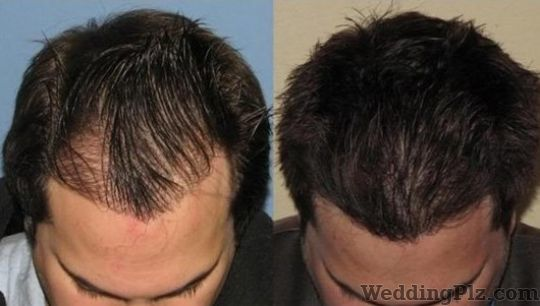 Agarwal Hair Transplant Centre Slimming Beauty and Cosmetology Clinic weddingplz