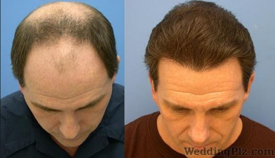 Walia Hair Transplant Center Slimming Beauty and Cosmetology Clinic weddingplz