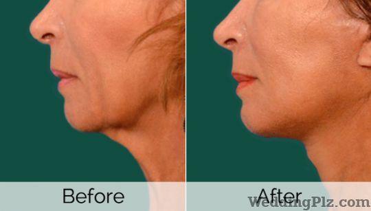 Akshatha Skin Care Clinic Slimming Beauty and Cosmetology Clinic weddingplz